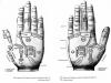 Hand-Akupressur